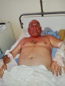 Vasile Miron în spital